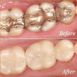 Crowns - Before & After